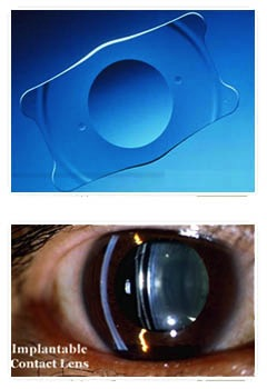 Other refractive surgery options